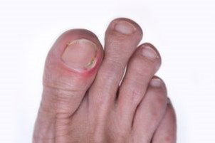 A picture of five toes.